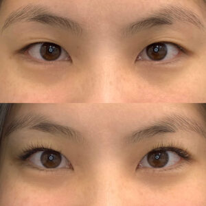 Eyewonderlust Eyelash Extensions for Asian Monolids Eyes Before and After Cosmetic Treatment and Correction Comparison Closeup