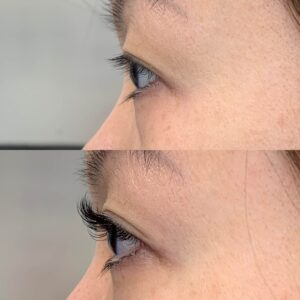 Eyewonderlust Eyelash Extensions for Asian Monolids Eyes - Before and After Cosmetic Treatment and Correction Comparison Facing Side